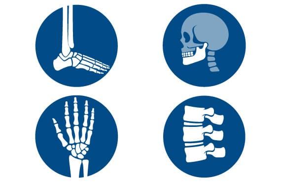 Ostenil mini, rhumathologie, arthrose, acide-hyaluronique, TRB-Chemedica
